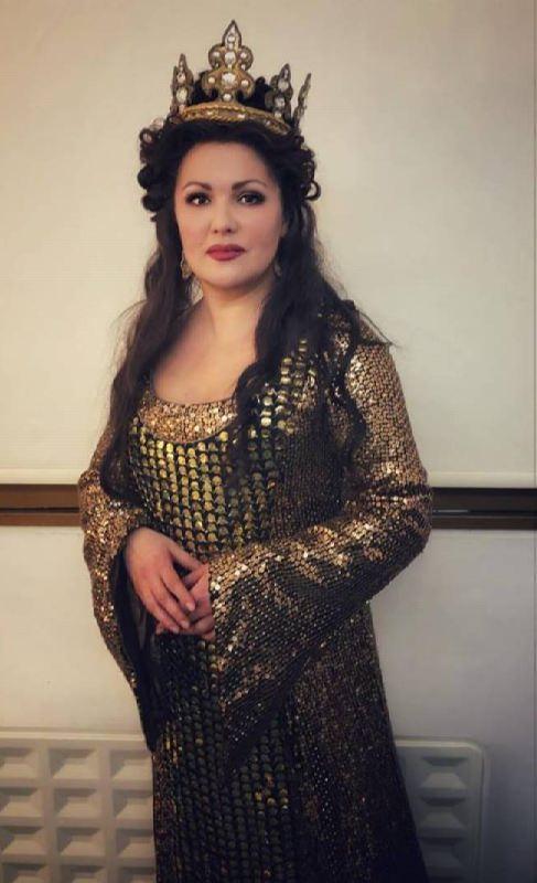 Stunning opera singer Netrebko Anna